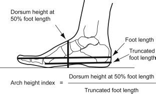 Biomechanical Assessment of Foot and Ankle - Physiopedia