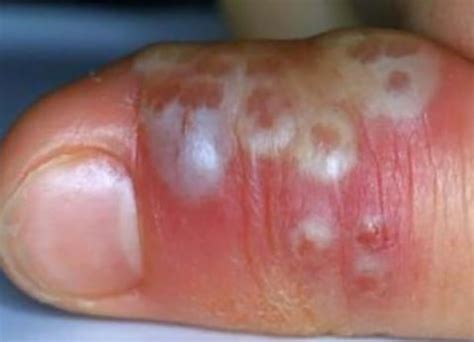 Herpetic Whitlow - Pictures, Treatment, Symptoms, What is